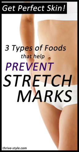 prevent stretch marks 1