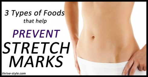 prevent stretch marks